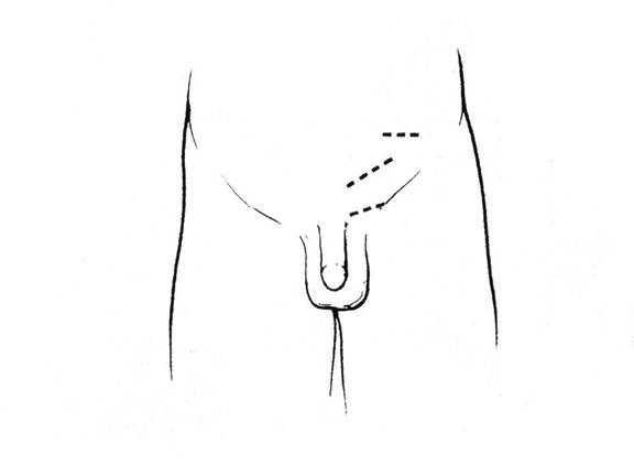 Inguinal Incision